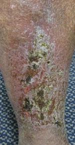 Leg Ulcer Cure