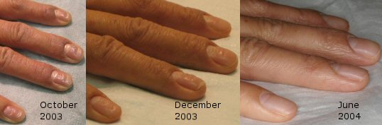 Steroid - Damaged Nails